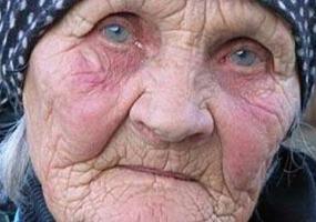 Следы возраста - морщинки. Старость.